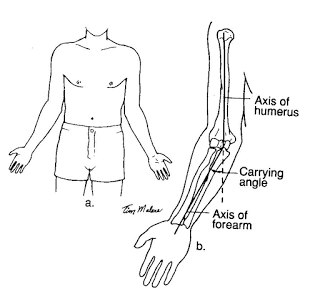 excessive carrying angle of the elbow