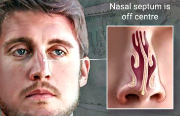 deviated nasal septum ssb interview