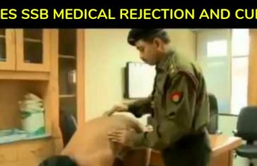 PILES SSB MEDICAL REJECTION AND CURE