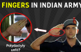 Can You Join Indian Army/AF/Navy With 6 Fingers [Polydactyly]
